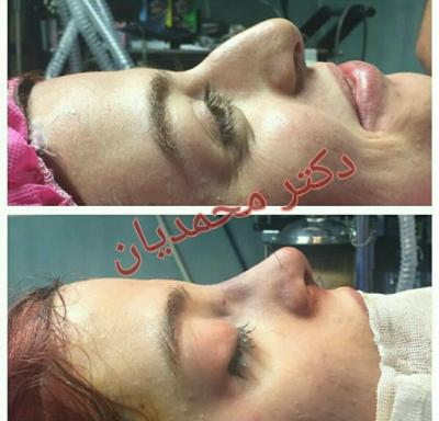 کانال جراحی بینی