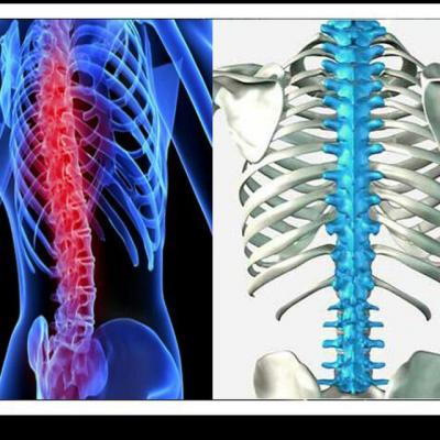 کانال درمان رایگان کمر درد
