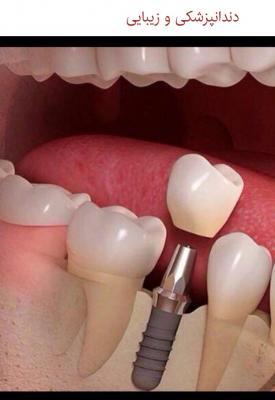 کانال ايمپلنت(كاشت دندان)