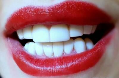 کانال دندانپزشکی زیبایی